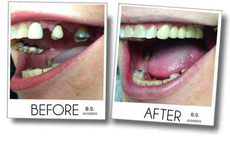 Tooth replacement, dental bridge, dental crowns, before and after of an actual dental case