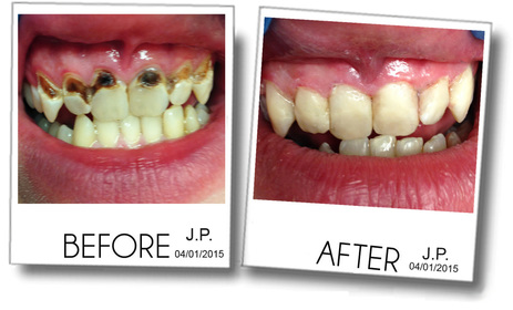 Teeth with severe decay is restored by composite, white dental filling and bonding.